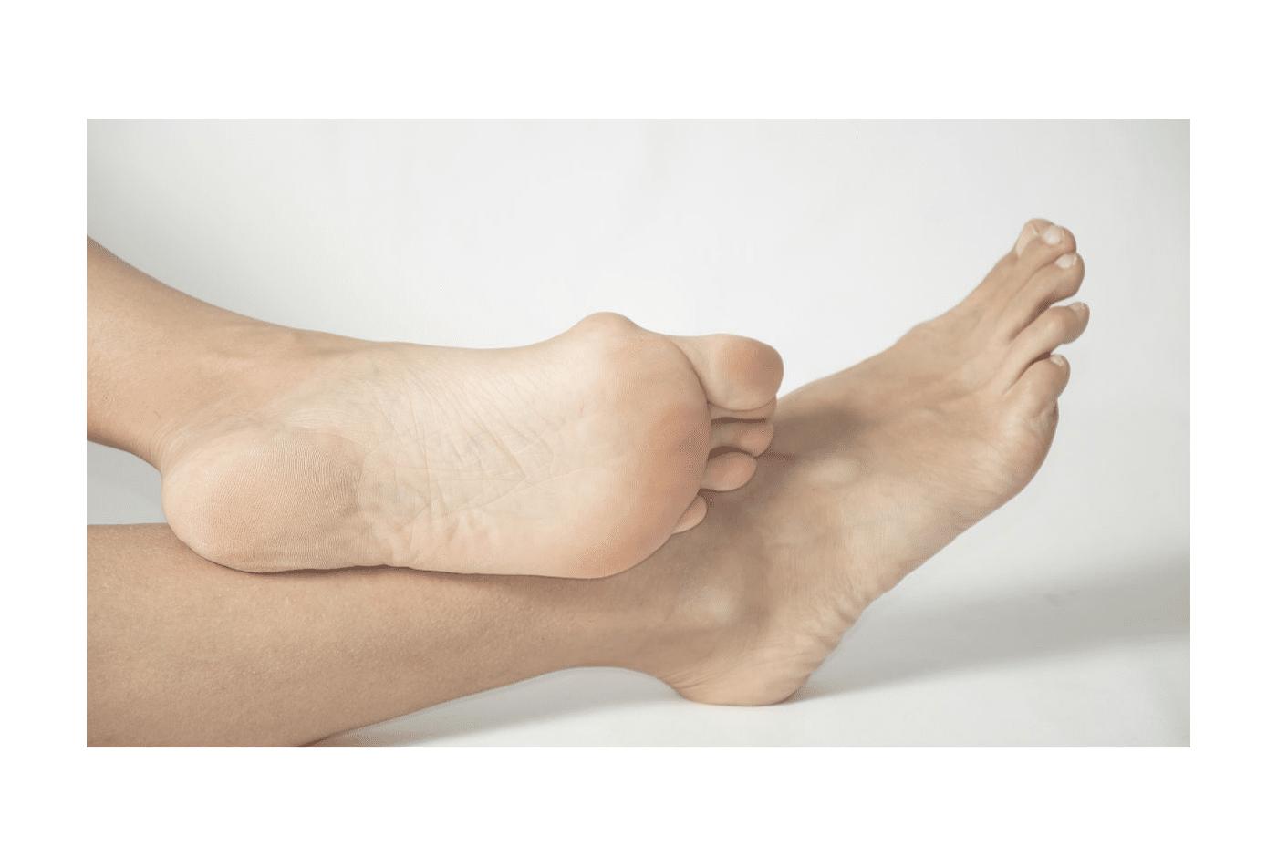 foot fitness alluce valgo