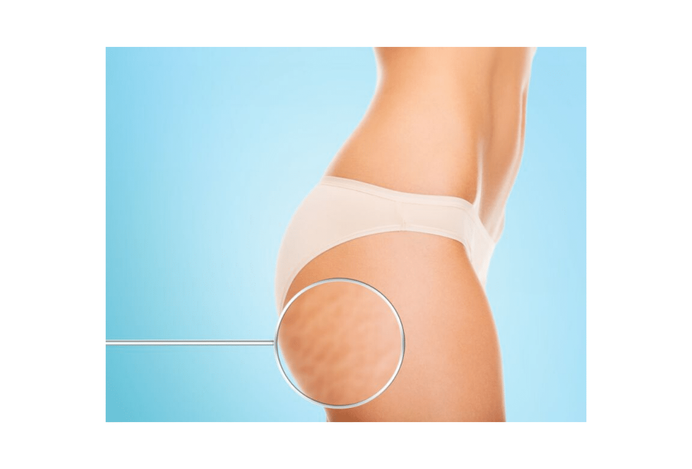 cellulite la verità